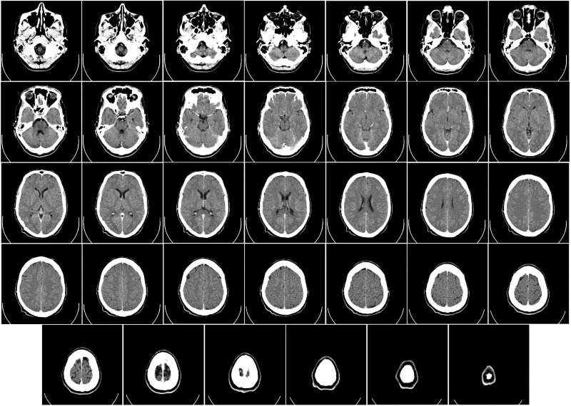 Google's Deep Learning AI project diagnoses cancer faster than pathologists