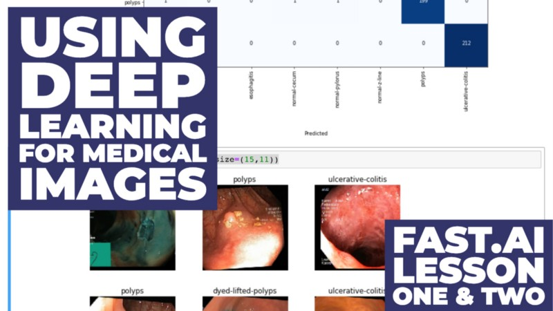 How I used Deep Learning to classify medical images with Fast ai